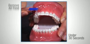 Brushing with Braces